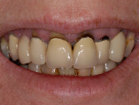 img_SmileMakeover_06