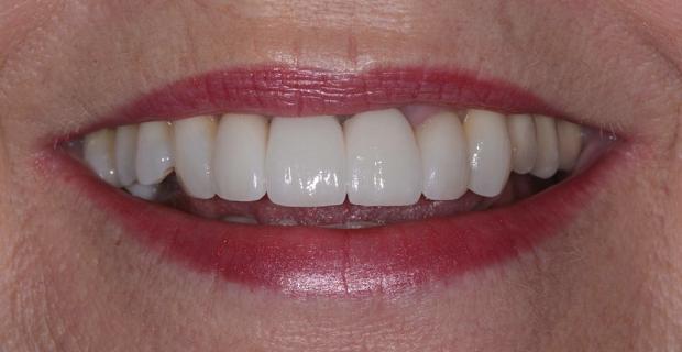 confident-smile-620x320px