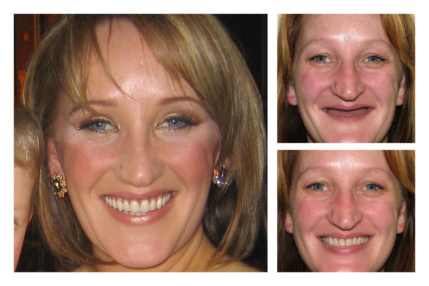 Extreme Makeover UK | Smile Design By Ash