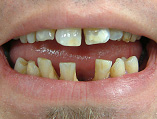 img_SmileMakeover_02