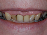 img_SmileMakeover_03