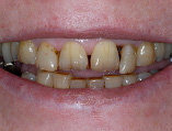 img_SmileMakeover_04
