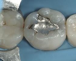 before-amalgam
