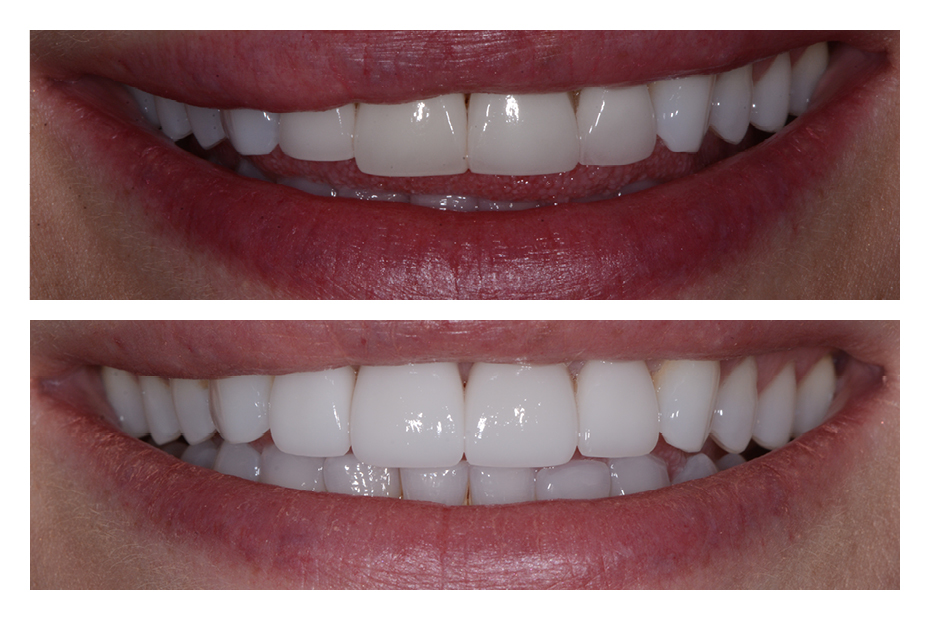Old Crowns & Veneers | Smile Design By Ash