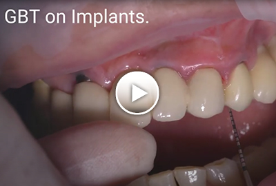 Cleaning implants